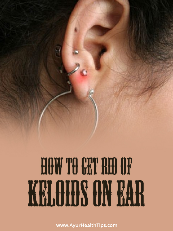 How to Get rid of Keloids on Ear